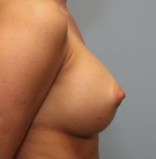 Breast Augmentation Gallery - Patient 58490389 - Image 6