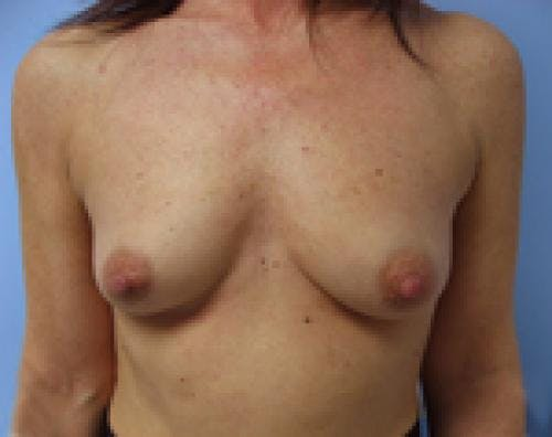 Breast Augmentation Gallery - Patient 58490390 - Image 1