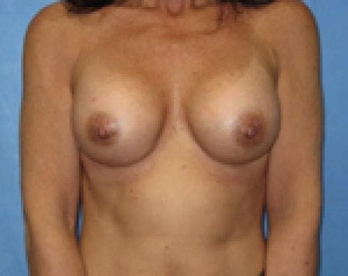 Breast Augmentation Gallery - Patient 58490390 - Image 2