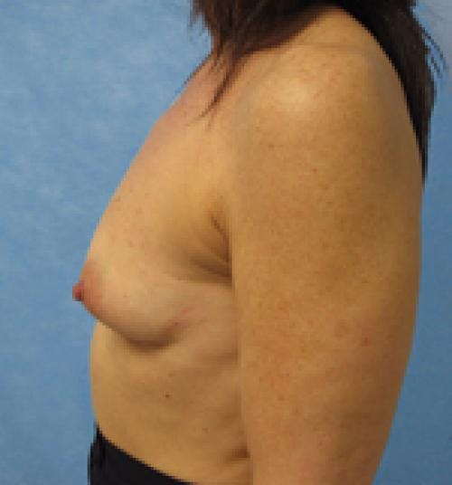 Breast Augmentation Gallery - Patient 58490390 - Image 3