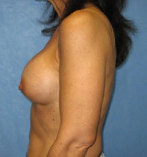 Breast Augmentation Gallery - Patient 58490390 - Image 4