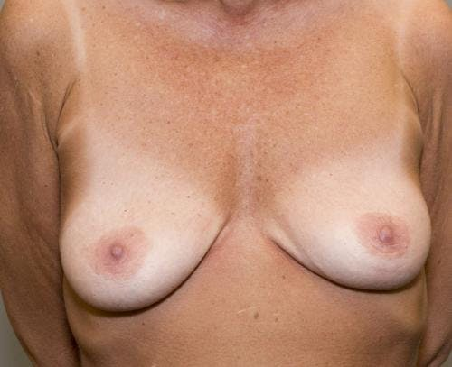 Breast Augmentation Gallery - Patient 58490391 - Image 1
