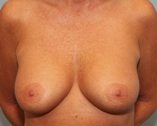 Breast Augmentation Gallery - Patient 58490391 - Image 2
