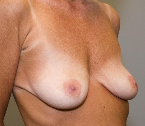 Breast Augmentation Gallery - Patient 58490391 - Image 3