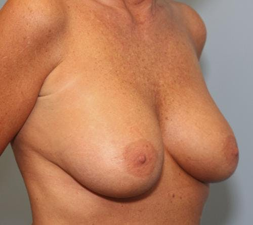 Breast Augmentation Gallery - Patient 58490391 - Image 4