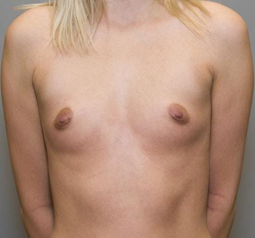 Breast Augmentation Gallery - Patient 58490392 - Image 1