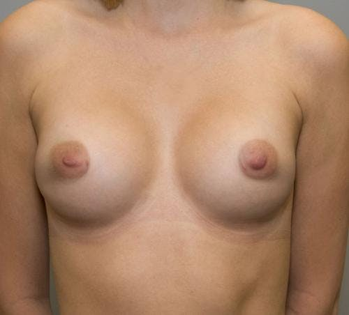Breast Augmentation Gallery - Patient 58490392 - Image 2