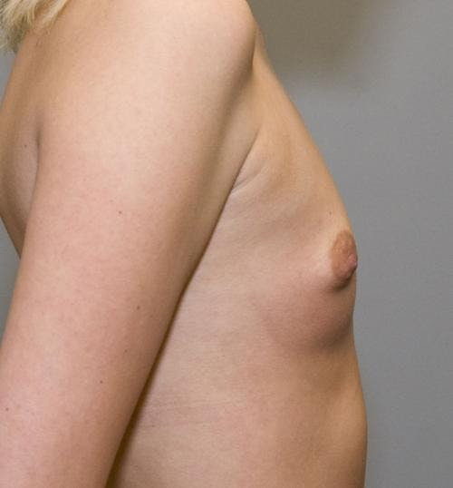 Breast Augmentation Gallery - Patient 58490392 - Image 3