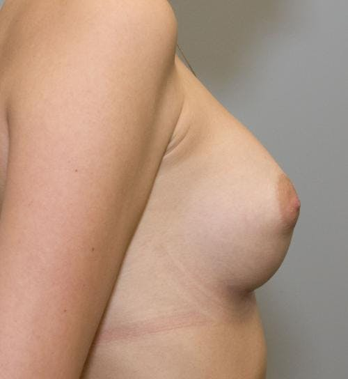 Breast Augmentation Gallery - Patient 58490392 - Image 4