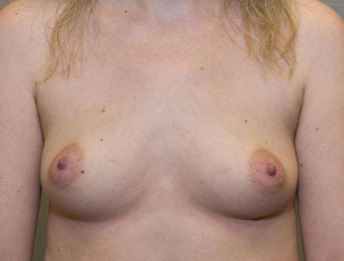 Breast Augmentation Gallery - Patient 58490393 - Image 1