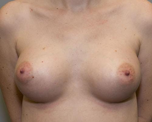 Breast Augmentation Gallery - Patient 58490393 - Image 2