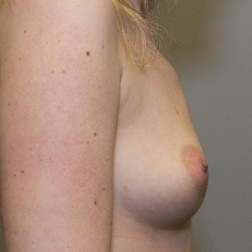 Breast Augmentation Gallery - Patient 58490393 - Image 3