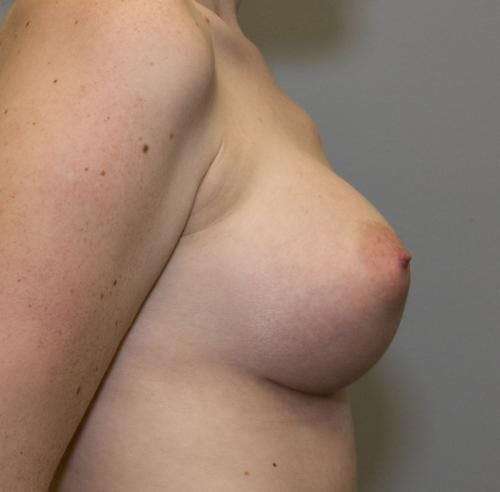 Breast Augmentation Gallery - Patient 58490393 - Image 4