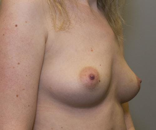 Breast Augmentation Gallery - Patient 58490393 - Image 5