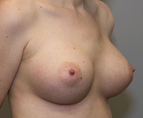 Breast Augmentation Gallery - Patient 58490393 - Image 6