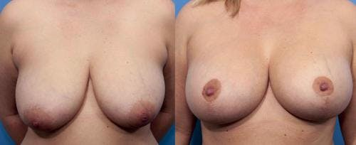 Breast Lift with Augmentation Gallery - Patient 58490410 - Image 1