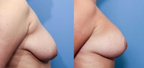 Breast Lift with Augmentation Gallery - Patient 58490410 - Image 2
