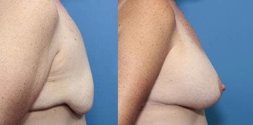 Breast Lift with Augmentation Gallery - Patient 58490411 - Image 2