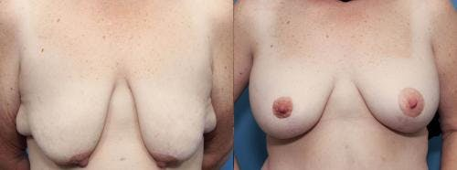 Breast Lift with Augmentation Gallery - Patient 58490411 - Image 1