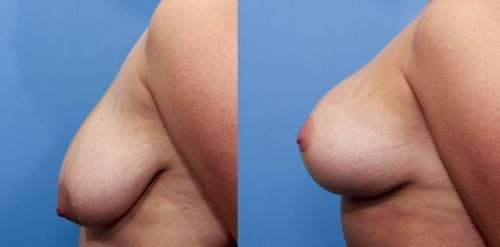 Breast Lift with Augmentation Gallery - Patient 58490413 - Image 2