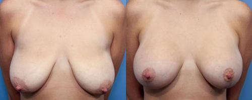 Breast Lift with Augmentation Gallery - Patient 58490414 - Image 1