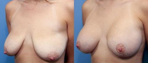Breast Lift with Augmentation Gallery - Patient 58490414 - Image 2