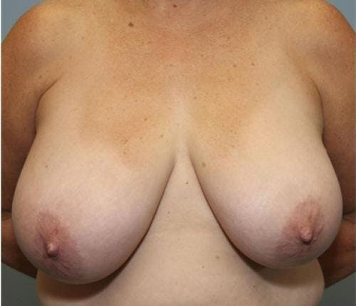 Breast Reduction Gallery - Patient 58490419 - Image 1