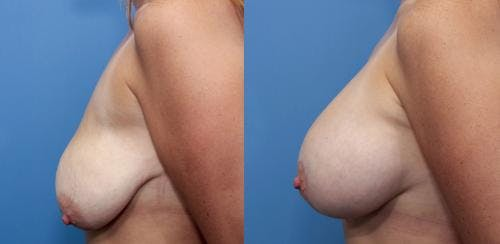 Breast Lift with Augmentation Gallery - Patient 58490414 - Image 3