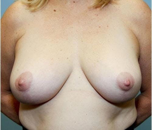 Breast Reduction Gallery - Patient 58490419 - Image 2