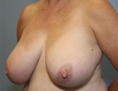 Breast Reduction Gallery - Patient 58490419 - Image 3