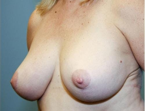 Breast Reduction Gallery - Patient 58490419 - Image 4