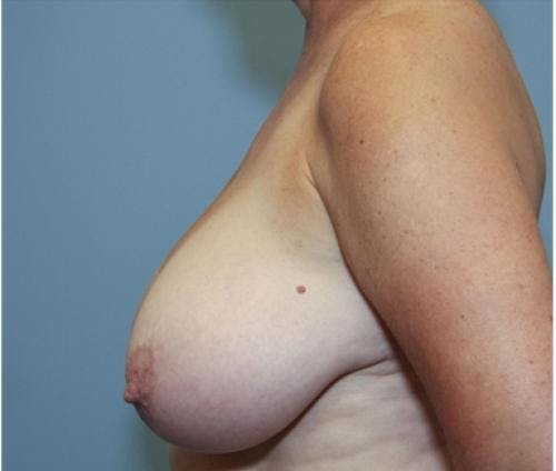 Breast Reduction Gallery - Patient 58490419 - Image 5