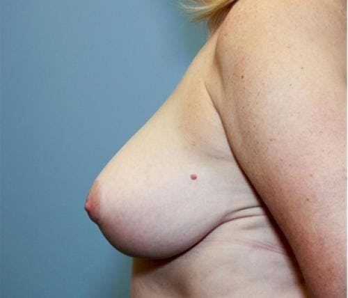 Breast Reduction Gallery - Patient 58490419 - Image 6