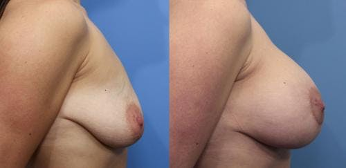 Breast Lift with Augmentation Gallery - Patient 58490420 - Image 3