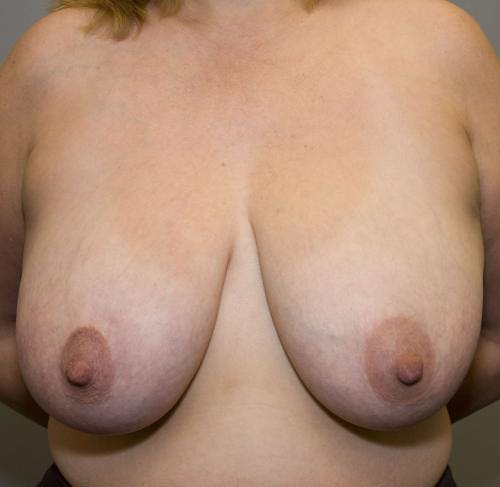 Breast Reduction Gallery - Patient 58490427 - Image 1
