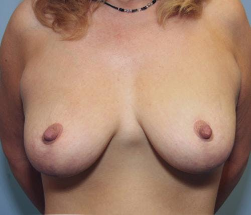 Breast Reduction Gallery - Patient 58490427 - Image 2