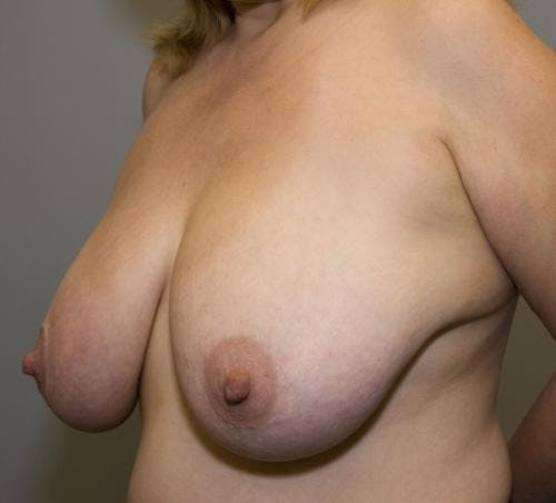 Breast Reduction Gallery - Patient 58490427 - Image 3