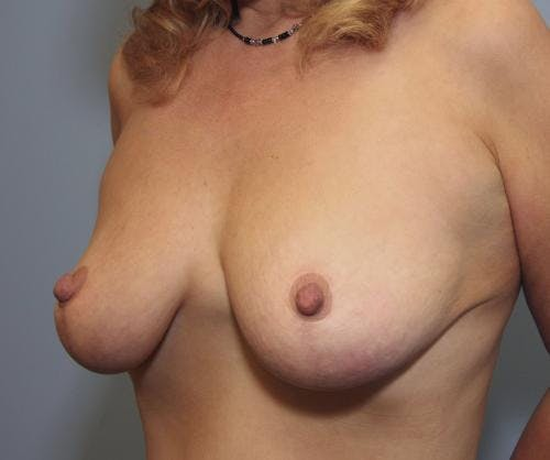 Breast Reduction Gallery - Patient 58490427 - Image 4