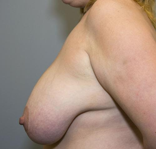 Breast Reduction Gallery - Patient 58490427 - Image 5