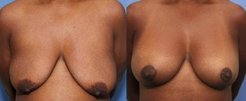 Breast Lift with Augmentation Gallery - Patient 58490426 - Image 1