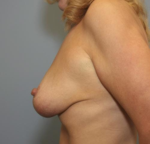 Breast Reduction Gallery - Patient 58490427 - Image 6