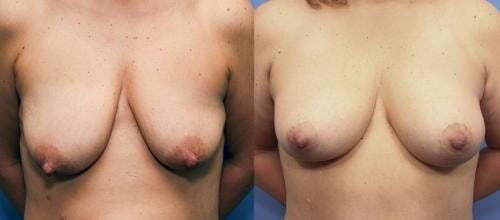 Breast Lift with Augmentation Gallery - Patient 58490428 - Image 1