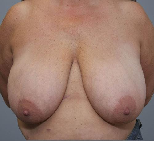 Breast Reduction Gallery - Patient 58490432 - Image 1