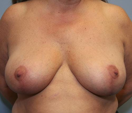 Breast Reduction Gallery - Patient 58490432 - Image 2