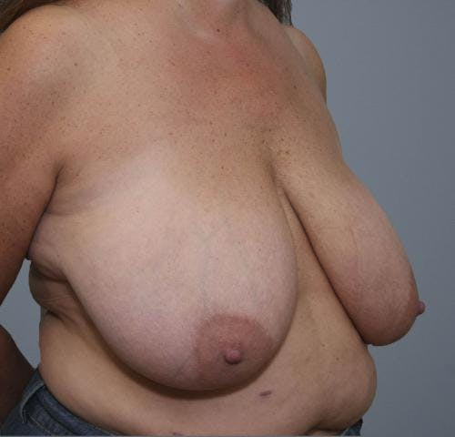 Breast Reduction Gallery - Patient 58490432 - Image 3