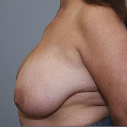 Breast Reduction Gallery - Patient 58490432 - Image 5