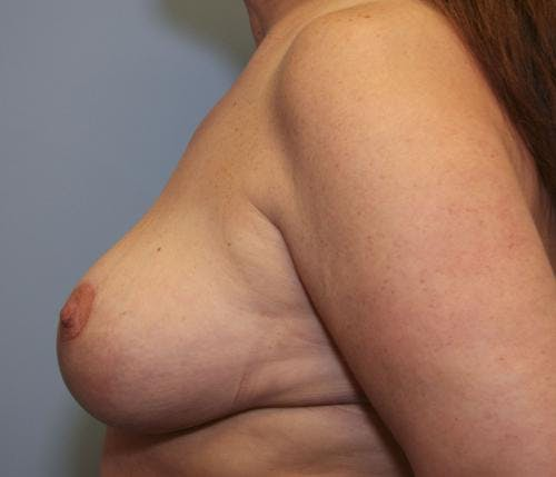 Breast Reduction Gallery - Patient 58490432 - Image 6