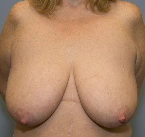 Breast Reduction Gallery - Patient 58490434 - Image 1