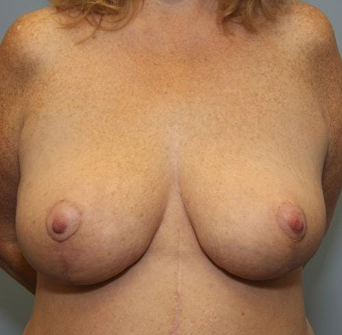 Breast Reduction Gallery - Patient 58490434 - Image 2