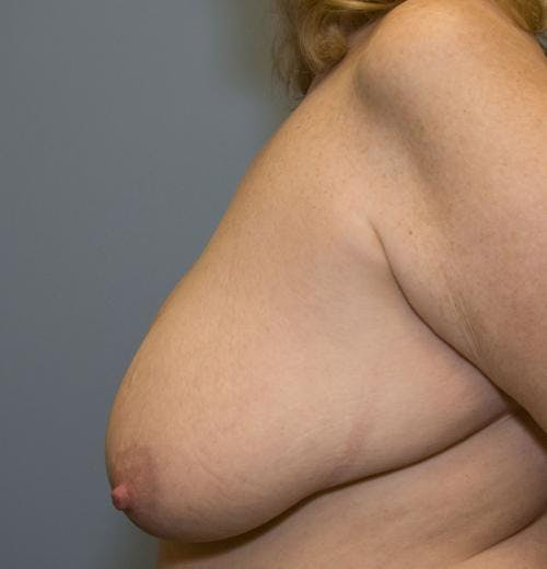 Breast Reduction Gallery - Patient 58490434 - Image 3